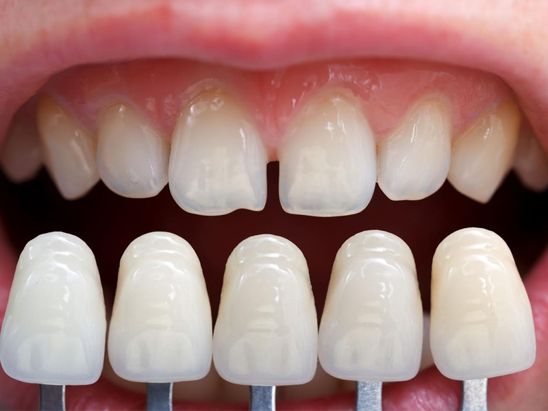 A Camera Ready Smile With Porcelain Veneers Image